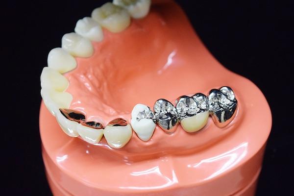 銀歯のデメリット