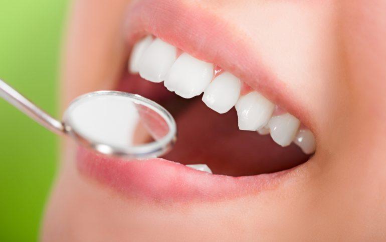 本入れ歯用の型取り