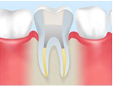 ④歯科用セメントの注入