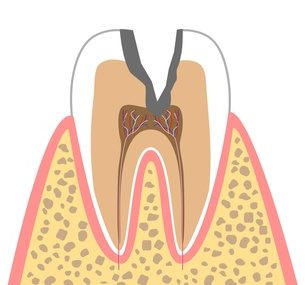 C3:歯髄に達するむし歯