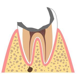 C4:歯根に達するむし歯